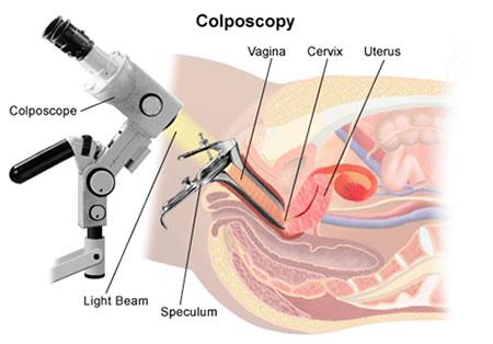کولپوسکوپی رحم چیست؟