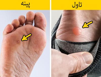 ۱۱ راه برای خلاص شدن از شر تاول و پینه پا