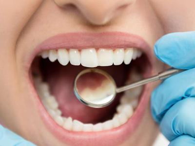 ۶ راه کارآمد برای از بین بردن پلاک دندان به طور طبیعی